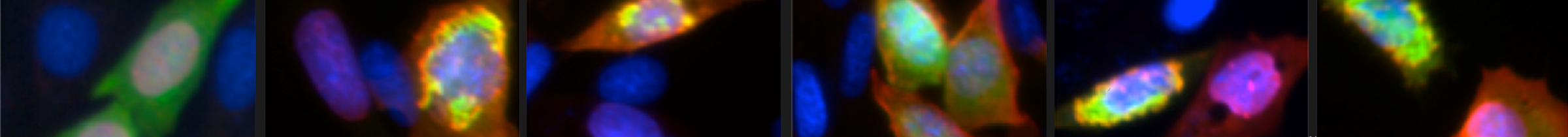 Figure 3. SUMOs colocalize with familial ALS-linked SOD1 mutants in intracellular aggregates.