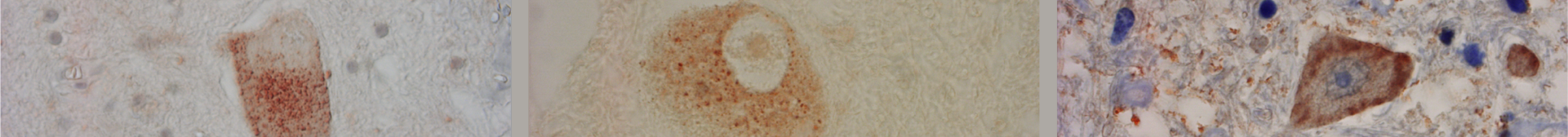 Figure 1. Micrographs of spinal cord motoneurons showing SOD1-immunoreactive inclusions.