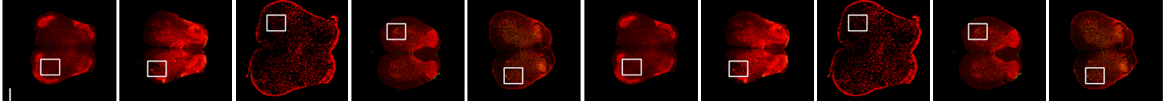 Figure 7. Immunofluorescence staining of the lumbar spinal cord section of SOD1G93A transgenic mouse transplanted with F3.Olig2-Shh cells.