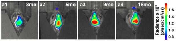 Tau mutations frontotemporal dementia