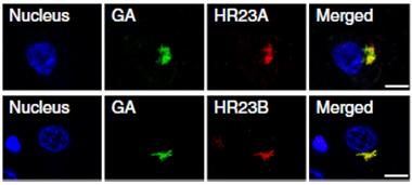 Double trouble: Poly(GA) peptides aggregate with HR23 proteins in the cytoplasm of neurons from people who died of C9ORF72-based disease. [Courtesy of Zhang et al., Nature.]