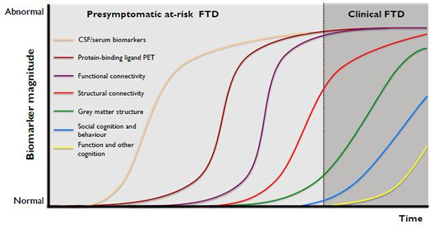 This sequence of events is how scientists theorize FTD might develop. GENFI and LEFFTDS are generating empirical data to test this staging model. [Courtesy of Jonathan Rohrer, UCL.]
