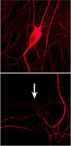 Taming tau. Researchers eliminated misfolded tau (top) by knocking down TIA1 (bottom). [Image courtesy Wolozin lab, Cell Reports, Creative Commons.]