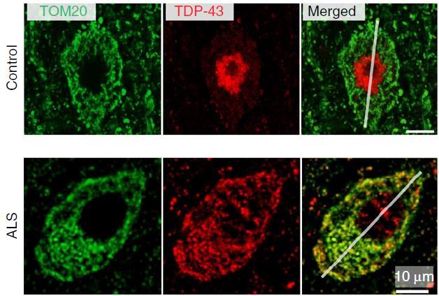 TDP-43 mitochondria