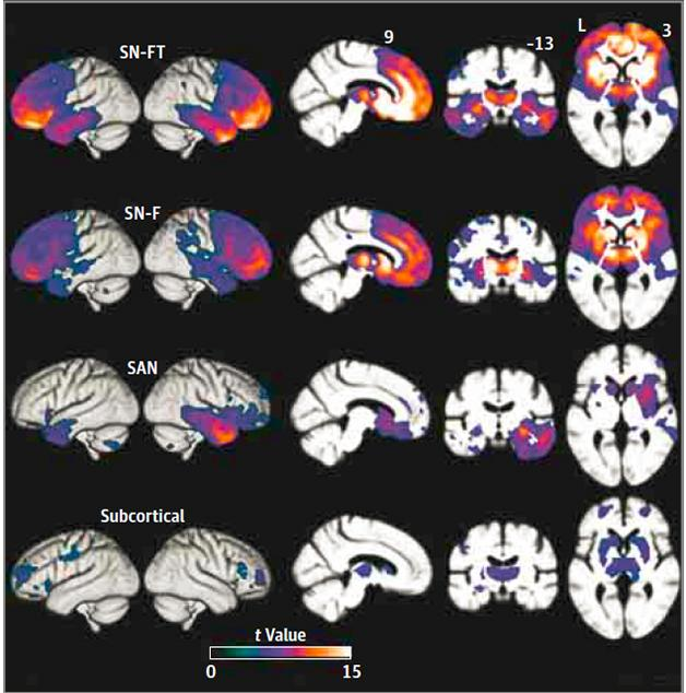 Variants of a Variant. Four distinct atrophy patterns occurred in people with bvFTD, each with differing involvement of the frontal, temporal, and subcortical regions of the SN and SAN networks. [Copyright 2016 American Medical Association. All rights reserved.]