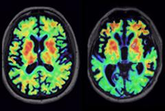 Tau PET Varies by Diagnosis. PET tracer AV1451 lights up different brain regions in a person with bvFTD caused by a MAPT mutation (left) than in a person with corticobasal degeneration (right), matching expected patterns of tau deposition. [Courtesy of Richard Tsai.]