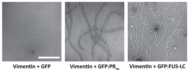 Deadly Dew? Vimentin (left) bound droplets of polyPR peptides (middle) or droplets of FUS (right). Researchers proposed the PR peptides could usurp vimentin's contacts with RNA granules. [Image courtesy of Lin et al., Cell 2016.]