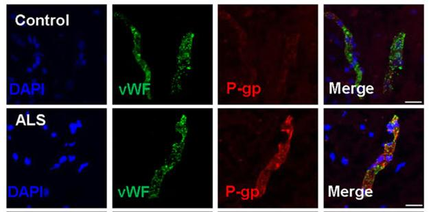 Excess Efflux: In people with ALS (bottom), lumbar spinal cord endothelial cells expressing von Willebrand factor (green) contain more of the molecular transporter pump P-glycoprotein (red) than do the same cells from neurologically healthy controls (top). [Image courtesy of Jablonski et al., 2014.]