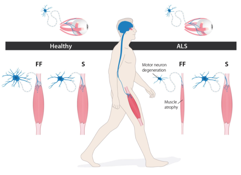 Als Research Forum Growth Factors In Als The Eyes Have It