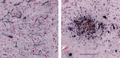 Microscopic pathology of chronic dietary L-BMAA exposure in vervets. Abundant neuropil threads, tangles and dystrophic neuronal processes were observed in the amygdala (left) and ranged from large and diffuse (right) to small dense aggregates (not shown). (Image courtesy of Cox et. al., 2016, under the CCBY 4.0).